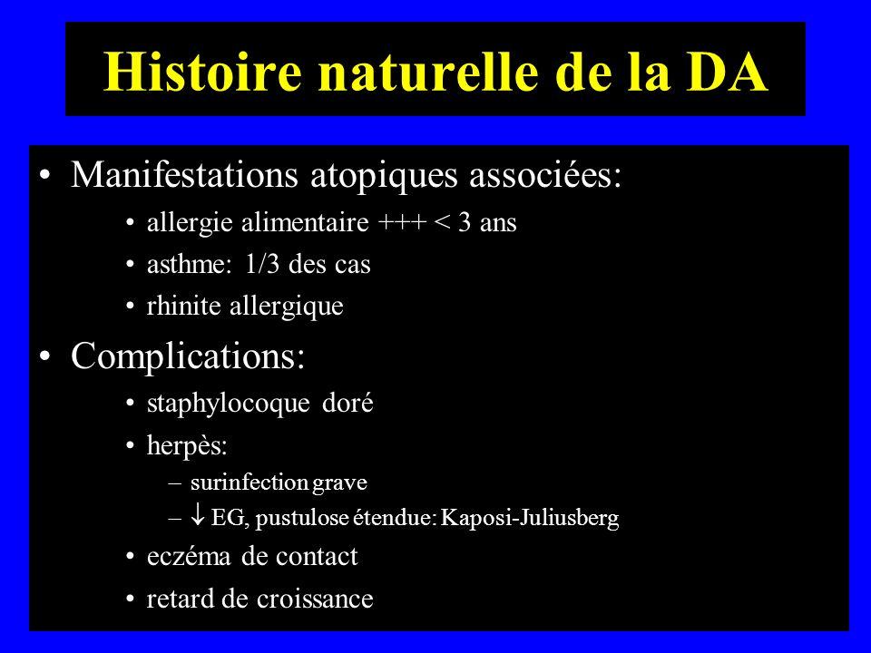 Histoire naturelle de la DA