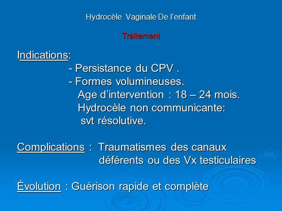 Hydrocèle Vaginale De l'enfant Traitement