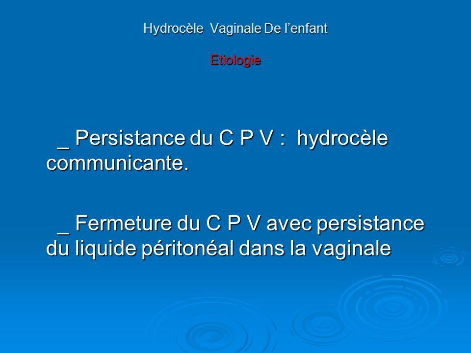 Hydrocèle Vaginale De l'enfant Etiologie
