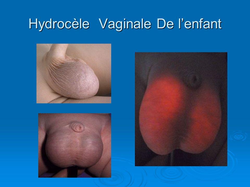 Hydrocèle Vaginale De l'enfant