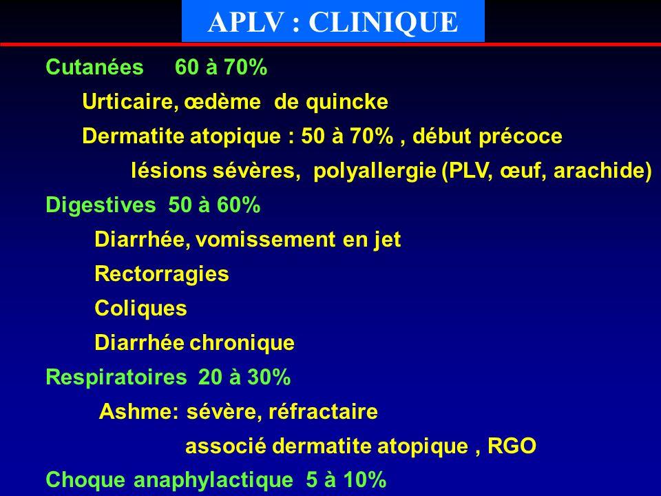 APLV : CLINIQUE Cutanées 60 à 70% Urticaire, œdème de quincke