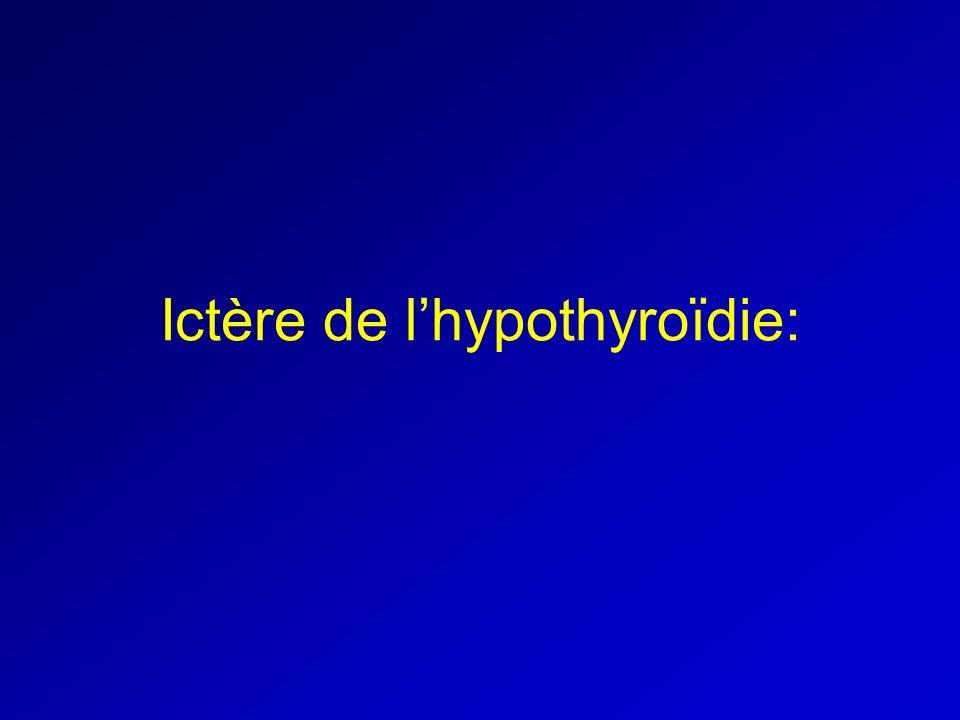 Ictère de l'hypothyroïdie: