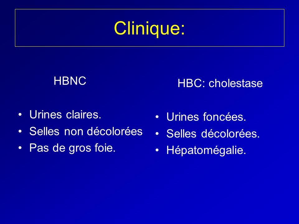 Clinique: HBNC HBC: cholestase Urines claires. Urines foncées.