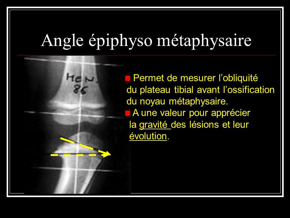 Angle épiphyso métaphysaire