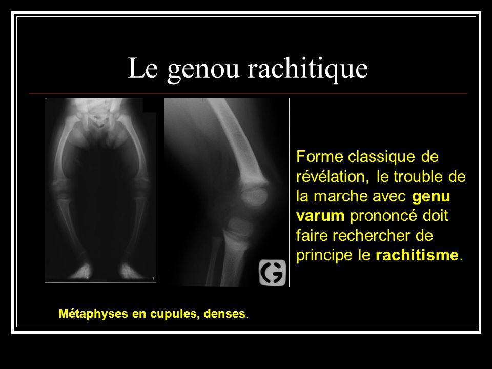 Le genou rachitique Forme classique de révélation, le trouble de la marche avec genu varum prononcé doit faire rechercher de principe le rachitisme.