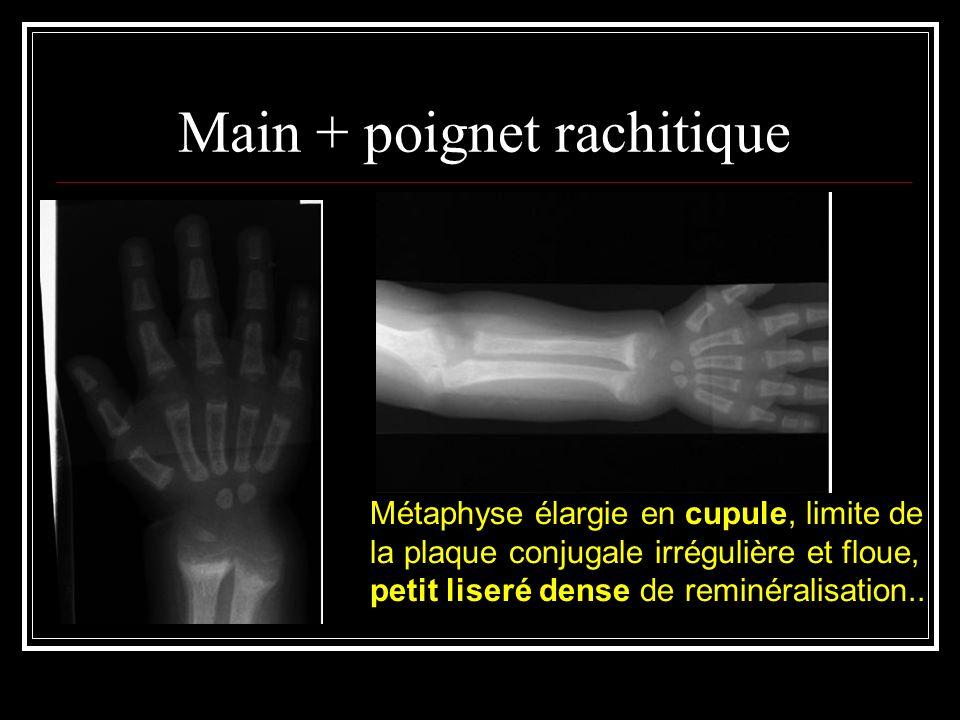 Main + poignet rachitique