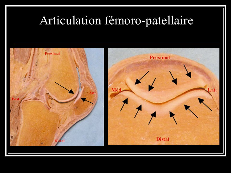 Articulation fémoro-patellaire
