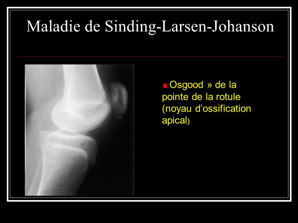 Maladie de Sinding-Larsen-Johanson