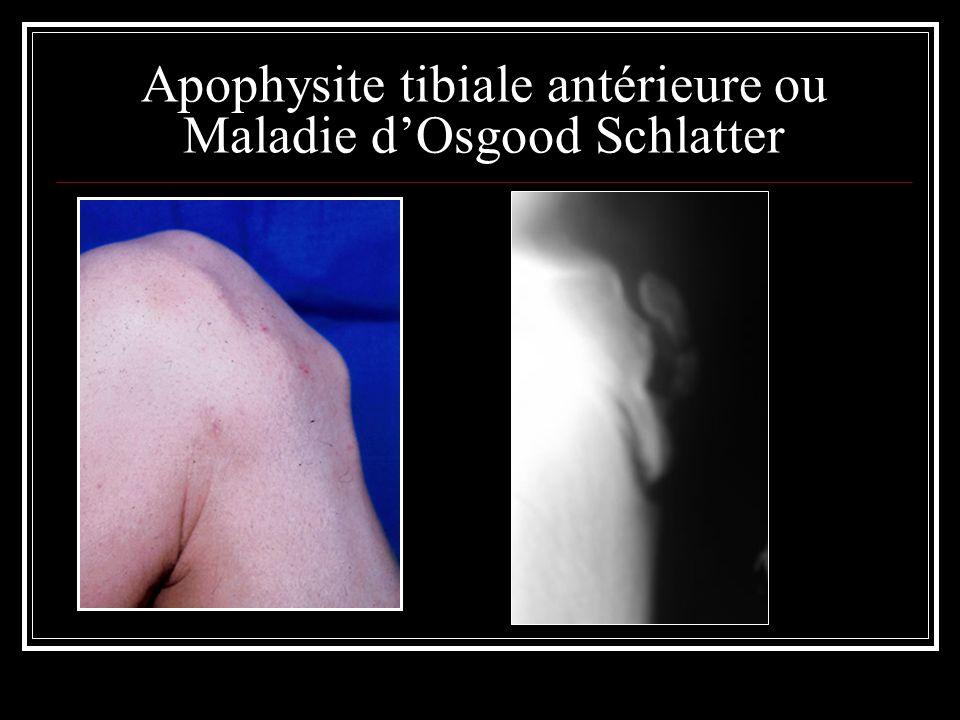 Apophysite tibiale antérieure ou Maladie d'Osgood Schlatter