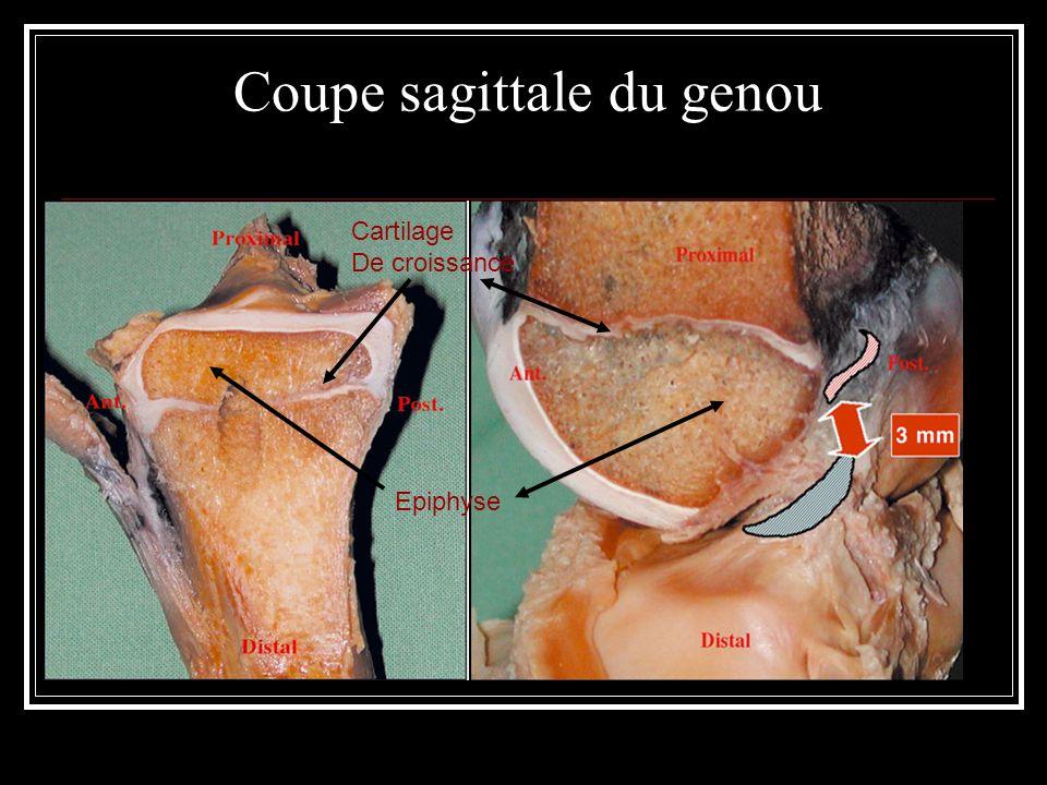 Coupe sagittale du genou