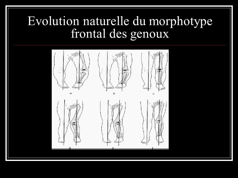 Evolution naturelle du morphotype frontal des genoux