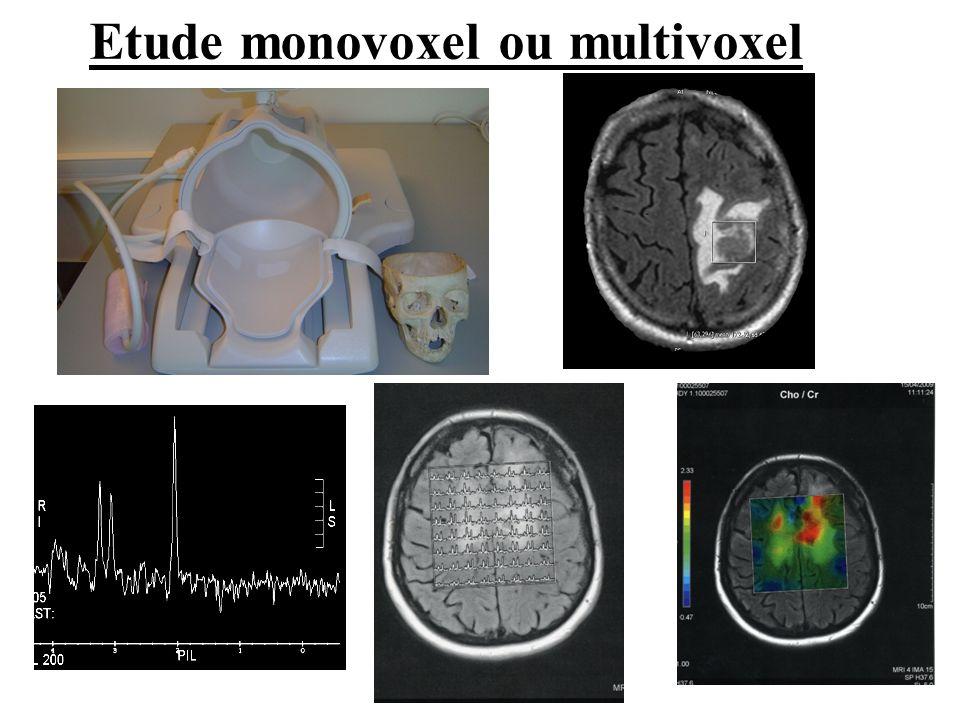 Etude monovoxel ou multivoxel