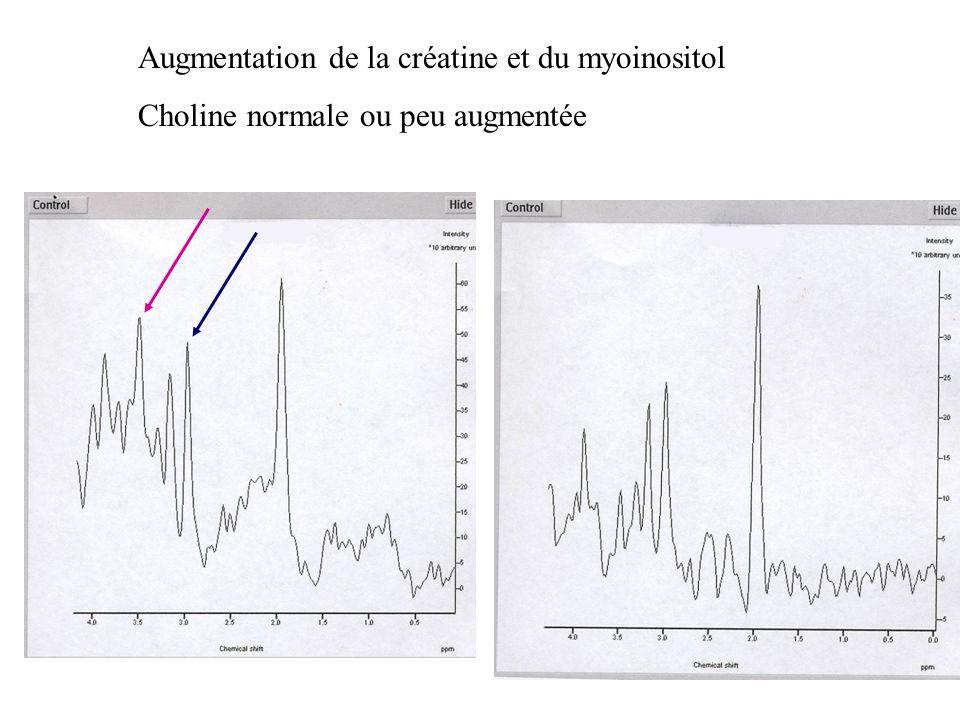 Augmentation de la créatine et du myoinositol