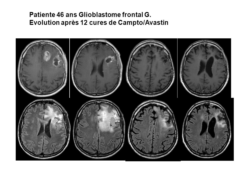 Patiente 46 ans Glioblastome frontal G.