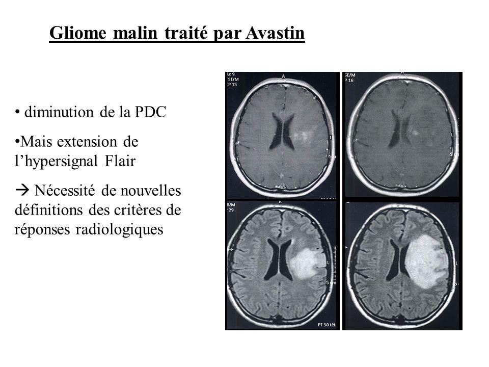 Gliome malin traité par Avastin