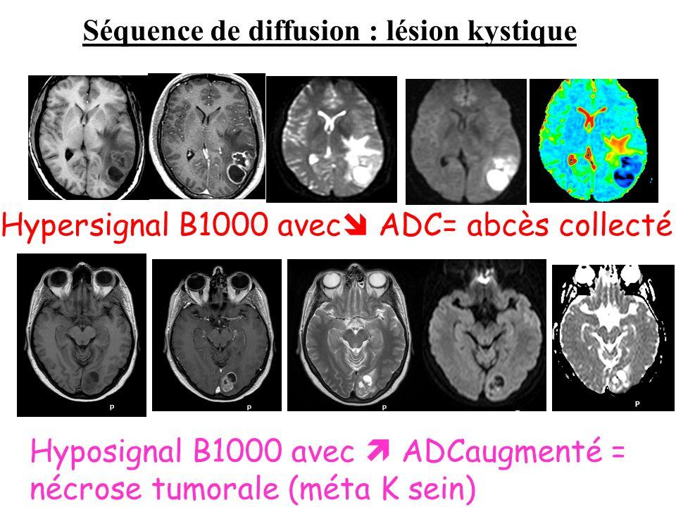 Hypersignal B1000 avec ADC= abcès collecté