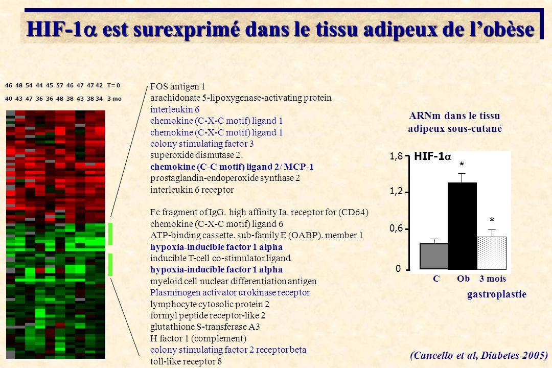 HIF-1a est surexprimé dans le tissu adipeux de l'obèse