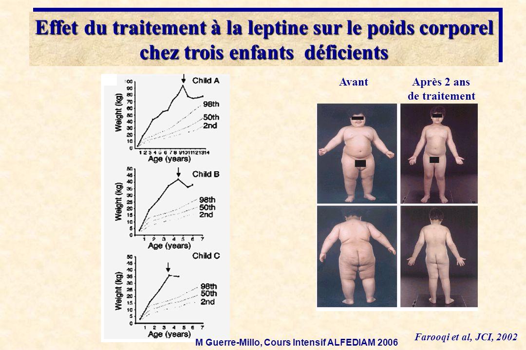 Effet du traitement à la leptine sur le poids corporel