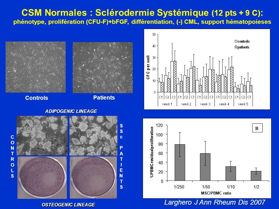 CSM Normales : Sclérodermie Systémique (12 pts + 9 C):