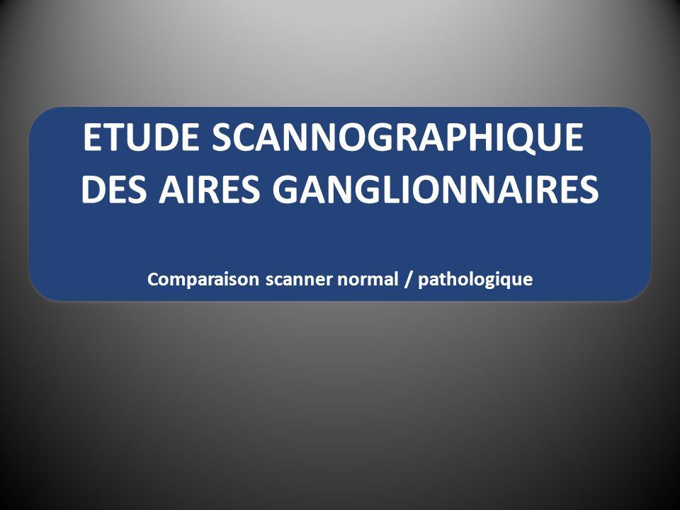 ETUDE SCANNOGRAPHIQUE DES AIRES GANGLIONNAIRES
