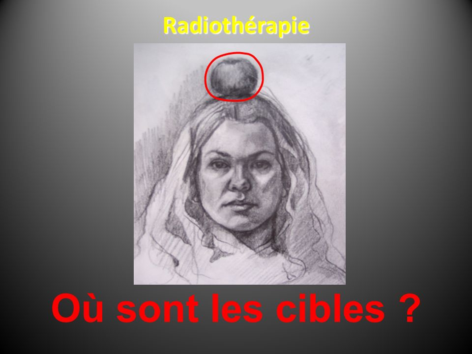 Radiothérapie Où sont les cibles