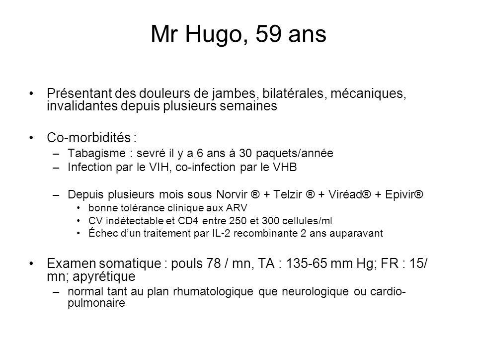 Mr Hugo, 59 ans Présentant des douleurs de jambes, bilatérales, mécaniques, invalidantes depuis plusieurs semaines.