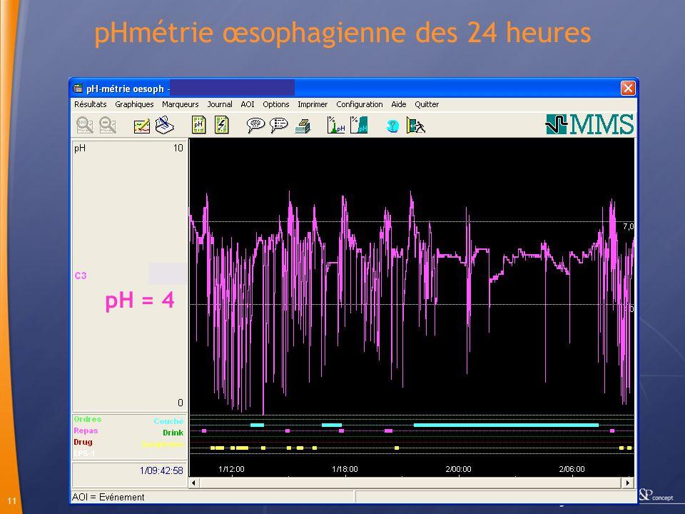 pHmétrie œsophagienne des 24 heures
