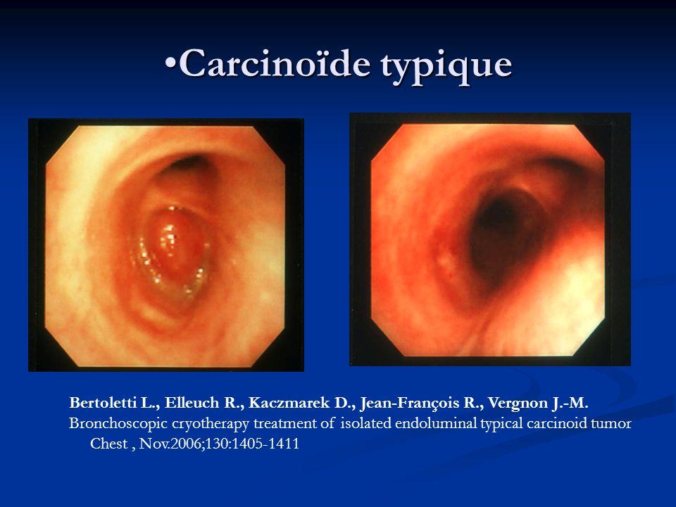 Carcinoïde typique Bertoletti L., Elleuch R., Kaczmarek D., Jean-François R., Vergnon J.-M.