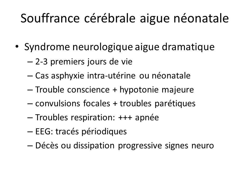 Souffrance cérébrale aigue néonatale