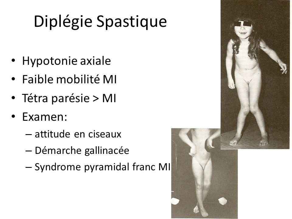 Diplégie Spastique Hypotonie axiale Faible mobilité MI