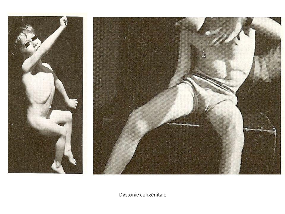 Dystonie congénitale