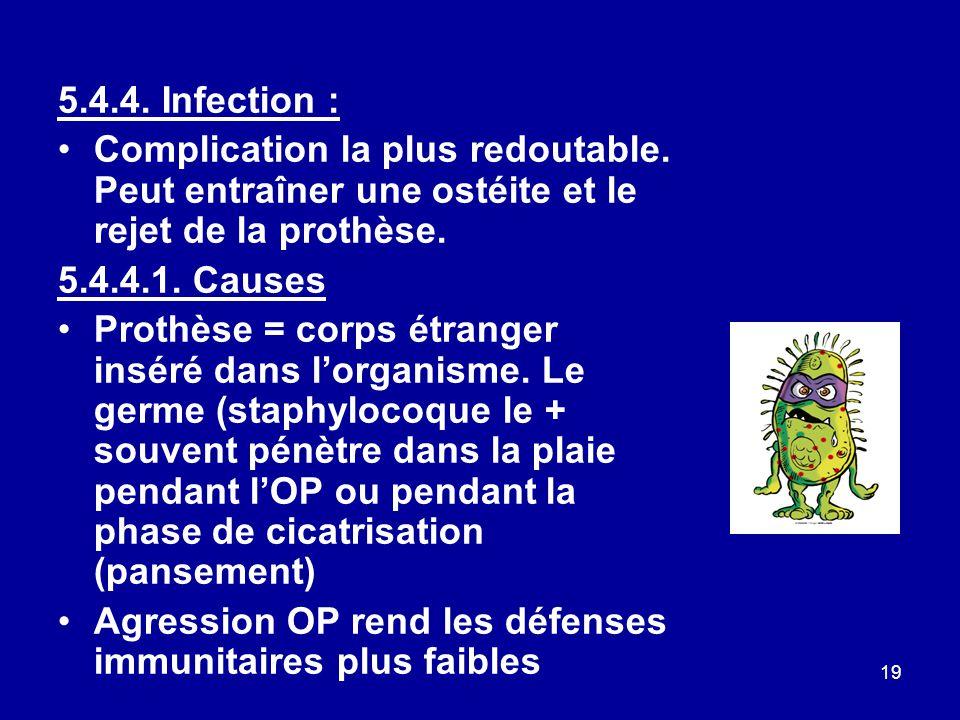 5.4.4. Infection : Complication la plus redoutable. Peut entraîner une ostéite et le rejet de la prothèse.