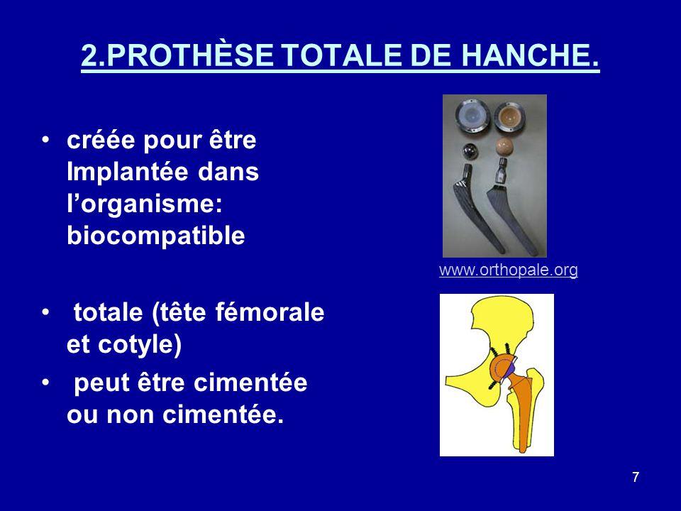 2.PROTHÈSE TOTALE DE HANCHE.
