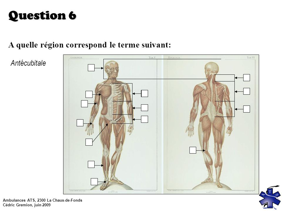 Question 6 A quelle région correspond le terme suivant: Antécubitale