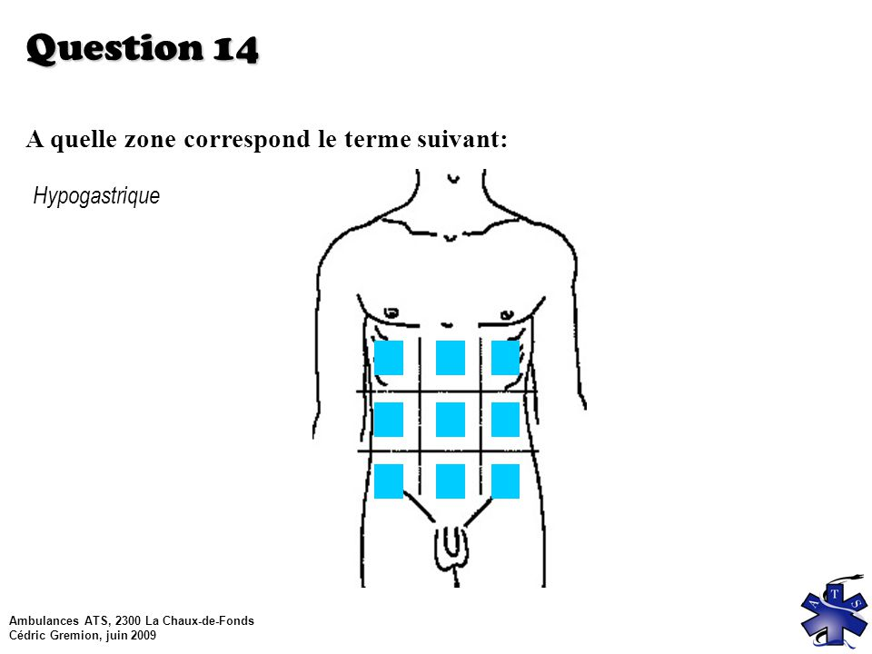 Question 14 A quelle zone correspond le terme suivant: Hypogastrique