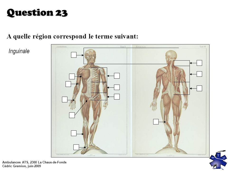 Question 23 A quelle région correspond le terme suivant: Inguinale