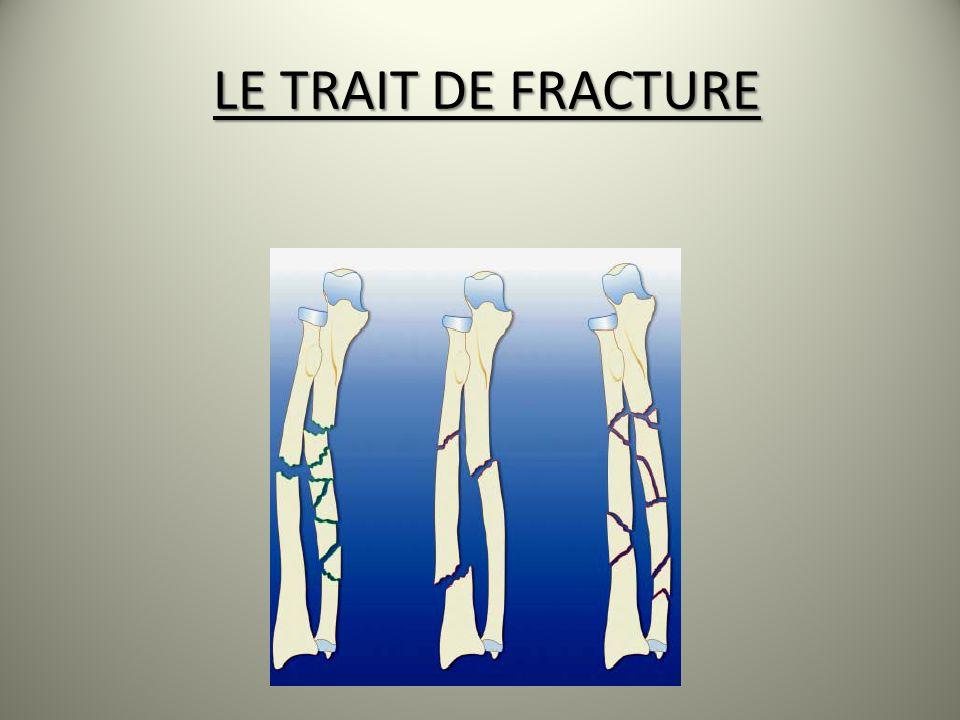 LE TRAIT DE FRACTURE