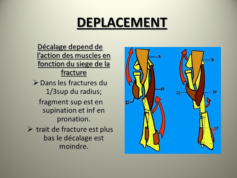 DEPLACEMENT Décalage depend de l'action des muscles en fonction du siege de la fracture. Dans les fractures du 1/3sup du radius;