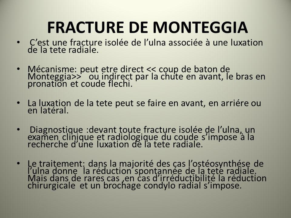 FRACTURE DE MONTEGGIA C'est une fracture isolée de l'ulna associée à une luxation de la tete radiale.
