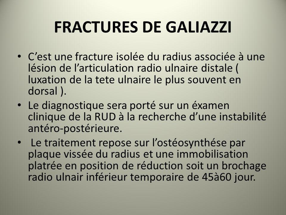 FRACTURES DE GALIAZZI
