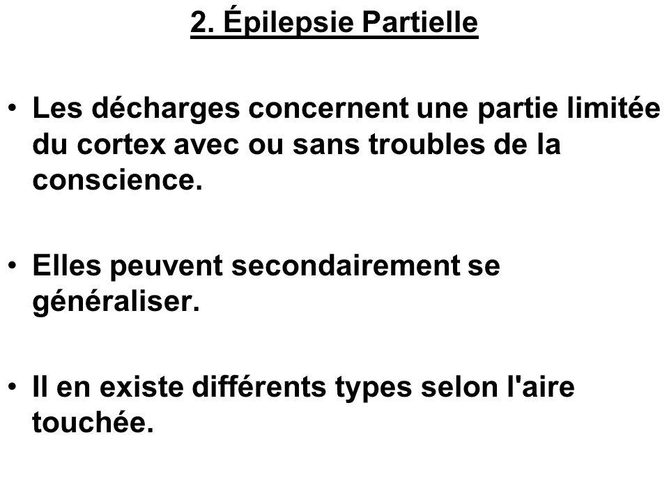 2. Épilepsie Partielle Les décharges concernent une partie limitée du cortex avec ou sans troubles de la conscience.
