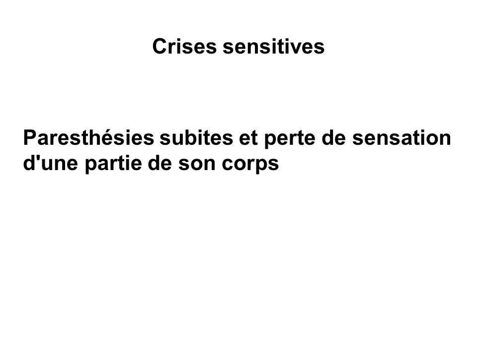 Crises sensitives Paresthésies subites et perte de sensation d une partie de son corps