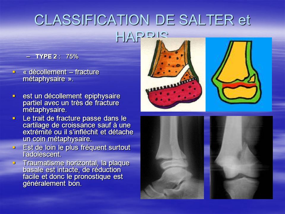 CLASSIFICATION DE SALTER et HARRIS