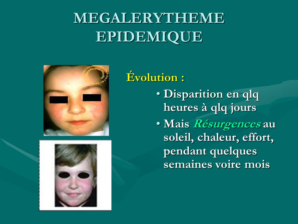 MEGALERYTHEME EPIDEMIQUE