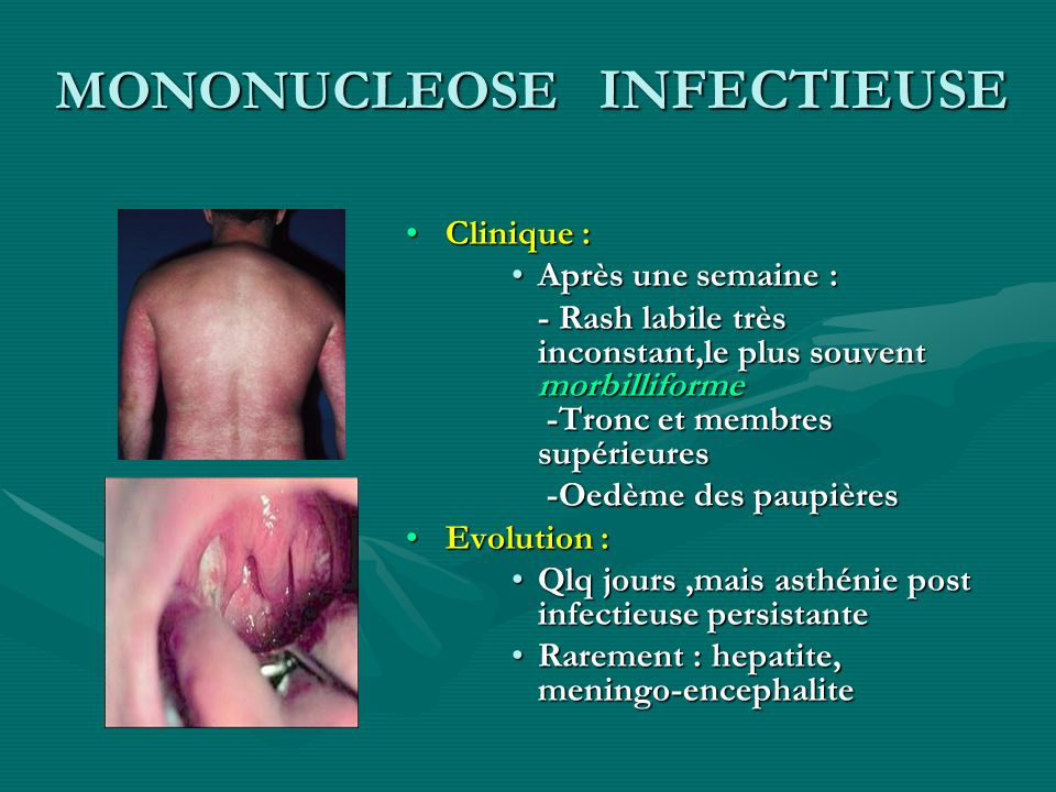 MONONUCLEOSE INFECTIEUSE