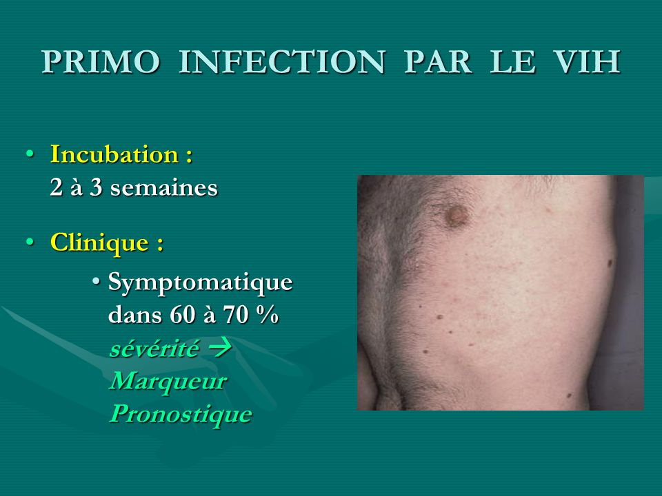 PRIMO INFECTION PAR LE VIH