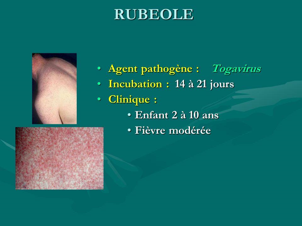 RUBEOLE Agent pathogène : Togavirus Incubation : 14 à 21 jours