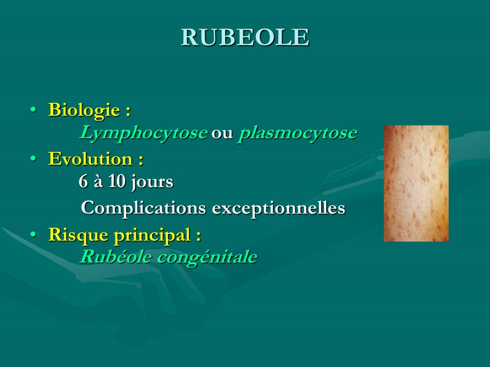 RUBEOLE Biologie : Lymphocytose ou plasmocytose
