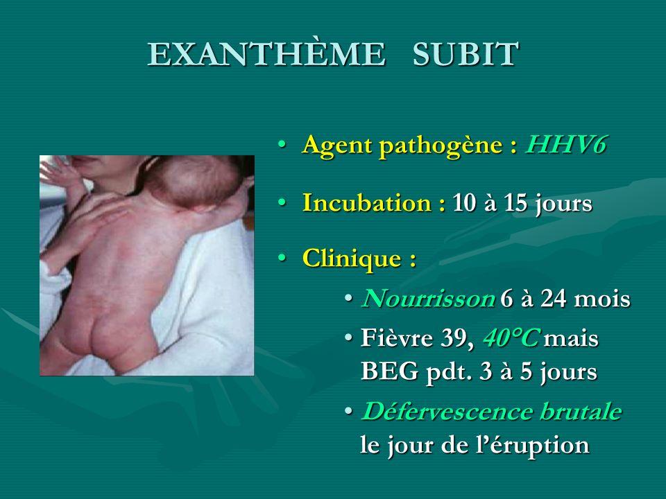 EXANTHÈME SUBIT Agent pathogène : HHV6 Incubation : 10 à 15 jours