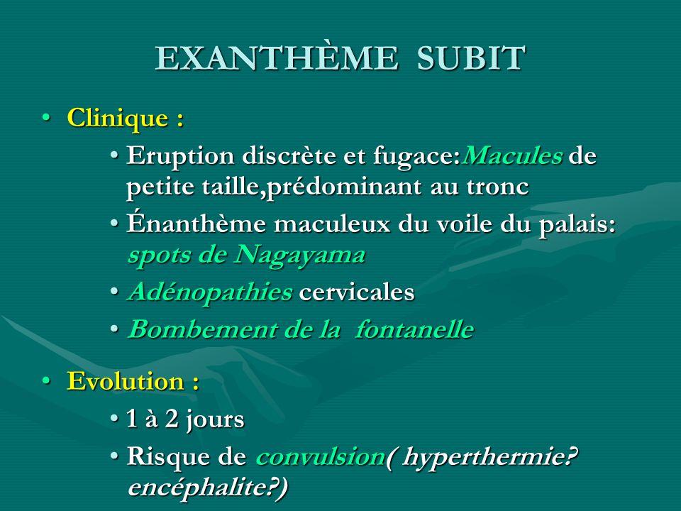 EXANTHÈME SUBIT Clinique :